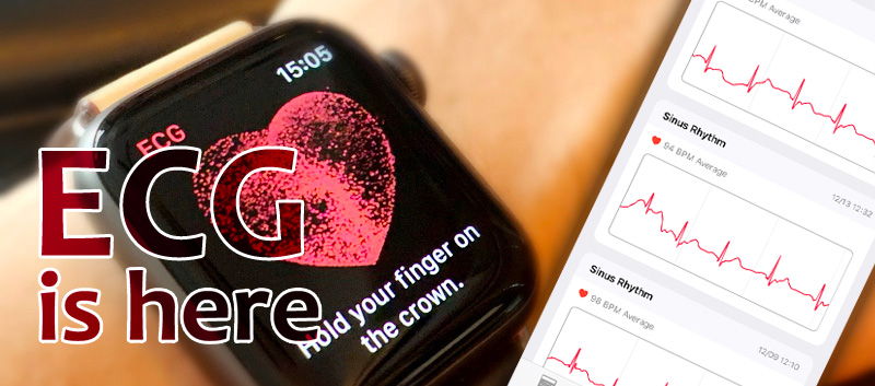 Apple Watchで心電図機能が解禁になったので試してみた!心臓疾患は怖いからこの機能は期待できそう!